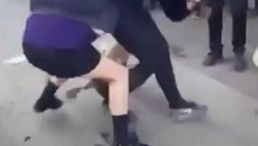 ظهور كدمات وأثر قدم على رأسها... معتدون يقتلعون شعر فتاة بهجوم وحشي (فيديو)