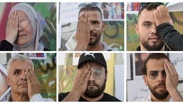 ناشطون فقدوا أعينهم خلال الانتفاضة (تصوير نبيل اسماعيل).
