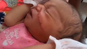 إحباط بدلاً من الفرحة... ولادة قيصرية طارئة تسبب جرحاً كبيراً في وجه طفلة