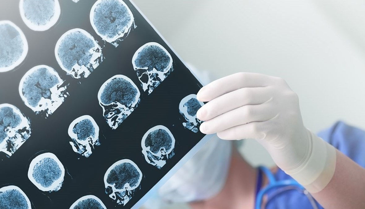 كيف نجحت العلاجات في التخفيف من حدّة المرض؟