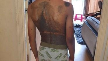 طفل يتعرّض للتنمّر بسبب حالة جلدية نادرة.