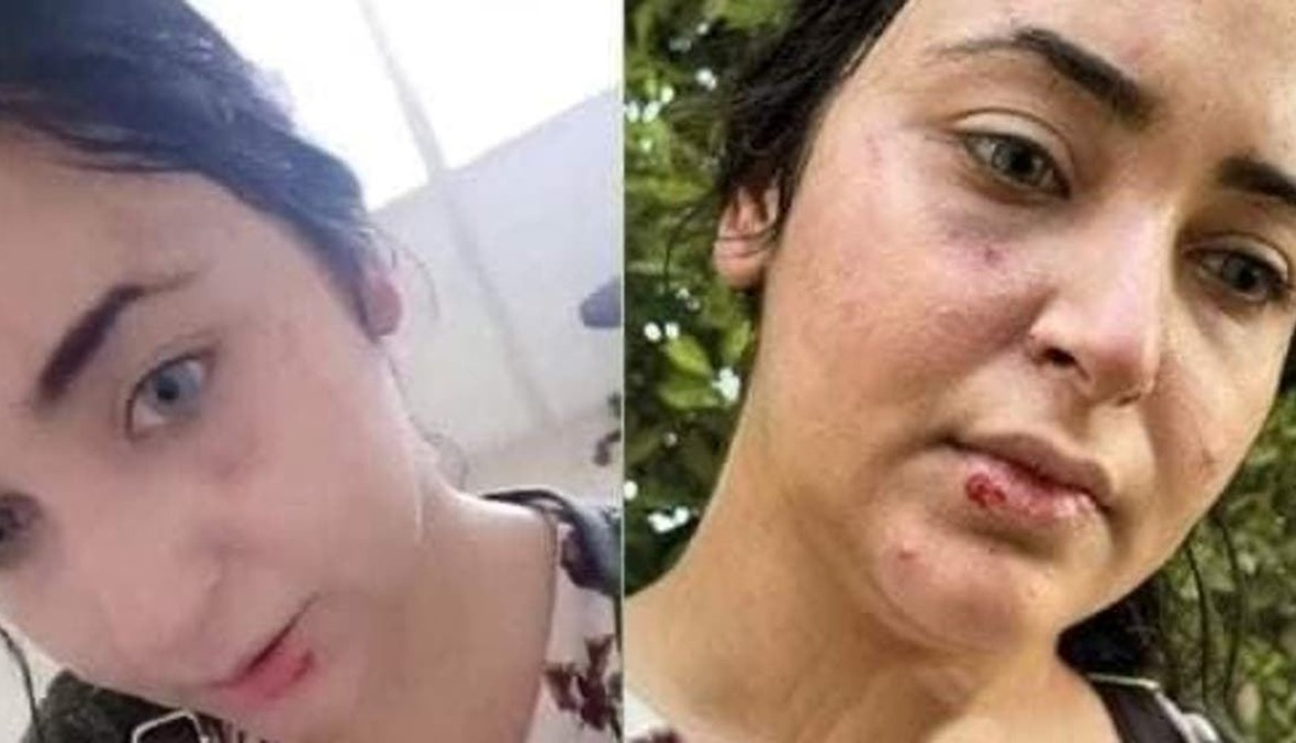 الصيدلانية  إيزيس مصطفى بعد تعرّضها للضرب.