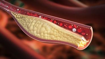 آلام في هذه المواضع في الجسم تنذر بارتفاع معدلات الكوليسترول!