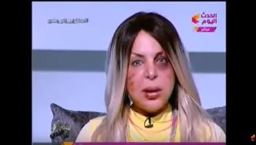 إعلامية مصرية تقصّ شعرها إلى حين الأخذ بالثأر (فيديو)