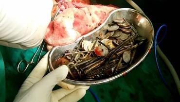 عثر الجراحون على 263 قطعة نقدية ومسامير وشفرات حلاقة في معدته