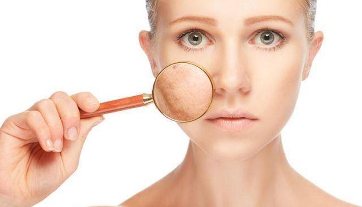 طرق طبيعية لعلاج تصبغات البشرة