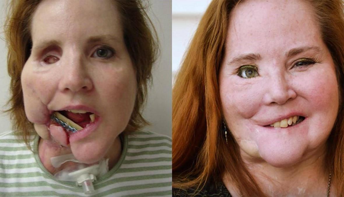 سيدة خضعت لـ 49 جراحة بعد محاولتها الانتحار تروي تجربتها