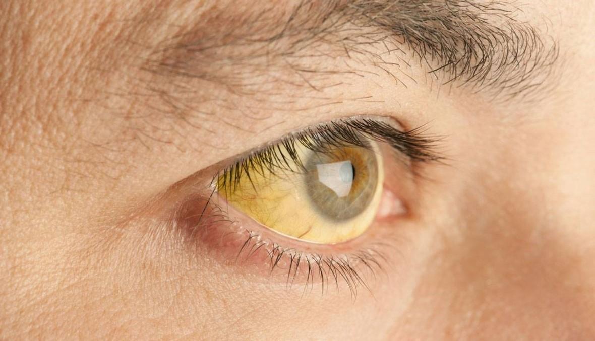 """ظهور مرض """"اليرقان"""" في عين الذهب... ما علاقة المياه بهذه الإصابات؟"""
