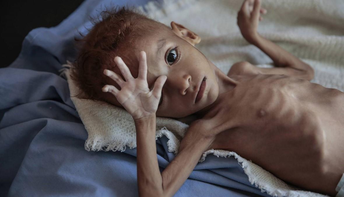 تحذير أممي... الأزمة الإنسانية في اليمن ستتفاقم السنة المقبلة