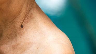 اكتشاف تركيبة دواء لمحاربة سرطان الجلد