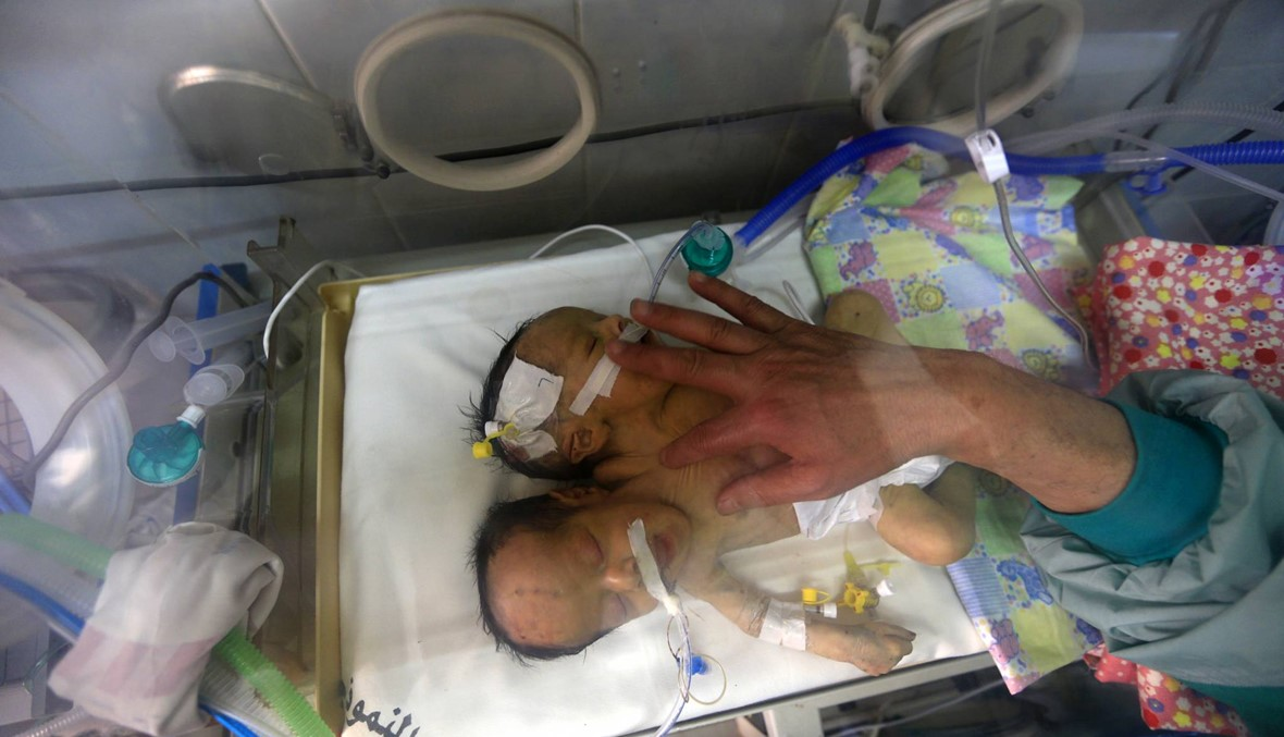 نهاية حزينة للتوأمين السياميّين اليمنيّين: عبد الخالق وعبد الرحيم فارقا الحياة