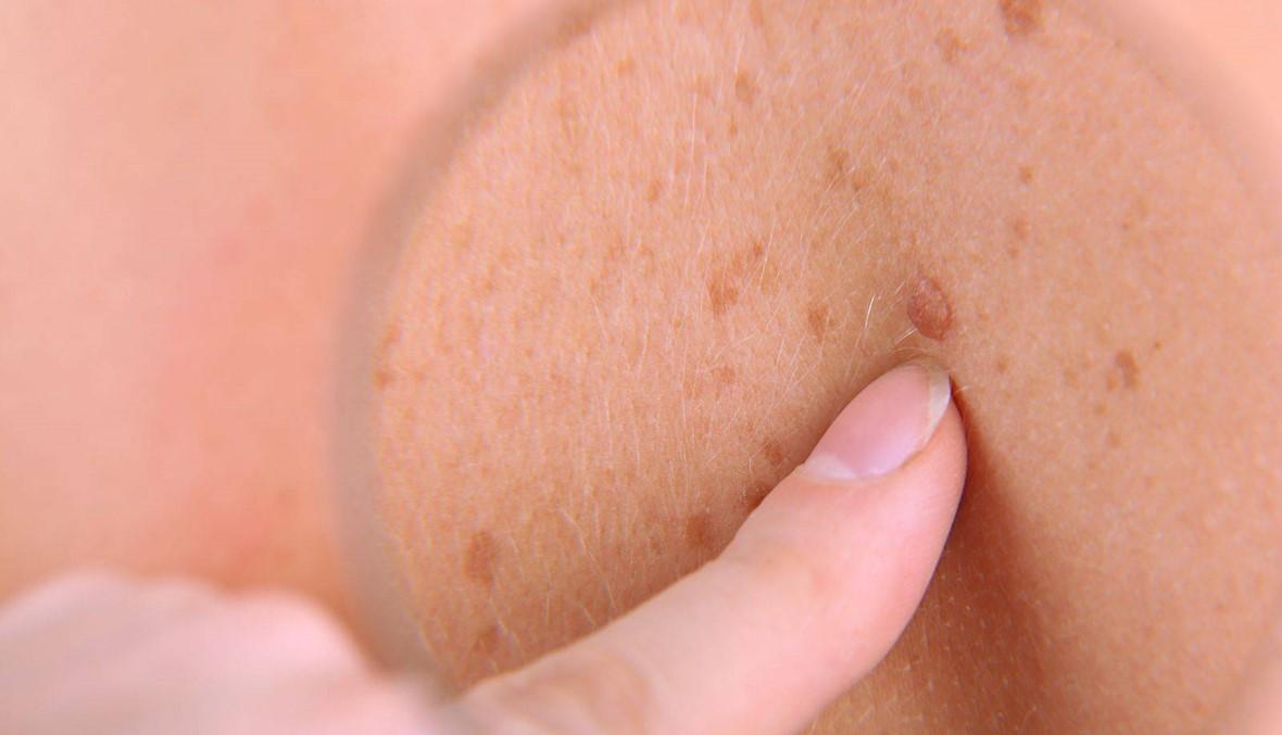 صحة- السبب الرئيسي لسرطان الجلد بات واضحاً... والوقاية ممكنة