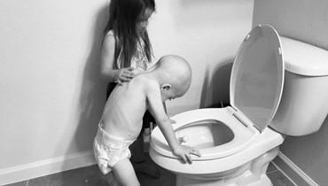 في صورة مؤثرة... طفلة تعتني بشقيقها المصاب بسرطان الدم