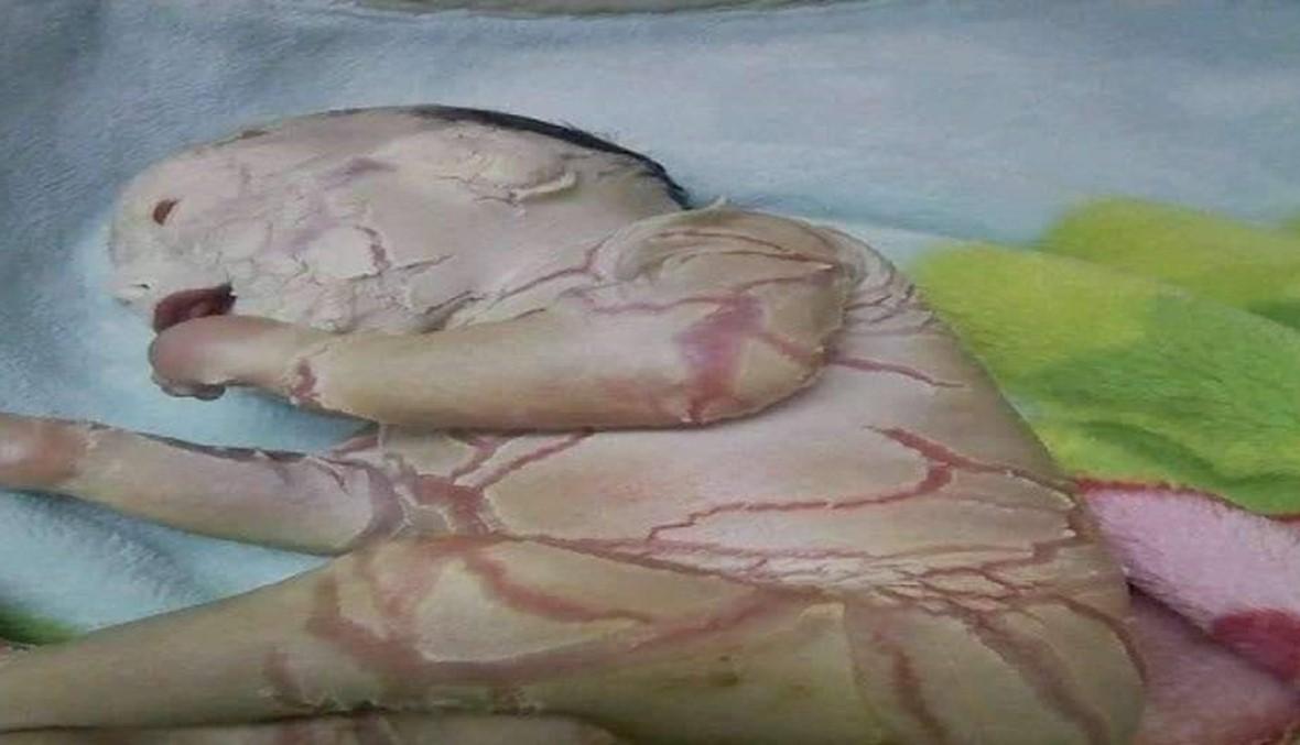 """مرض نادر يحول رضيعة مصرية إلى """"طفلة شمع"""" والحكومة تتكفل بعلاجها (صورة)"""