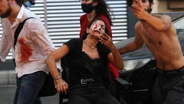 بهذه الطريقة يمكن العمل على تجميل جروح المصابين في انفجار مرفأ بيروت