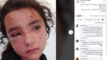 طفلة جريحة... صورة من غزة وبيروت؟ إليكم الحقيقة FactCheck#