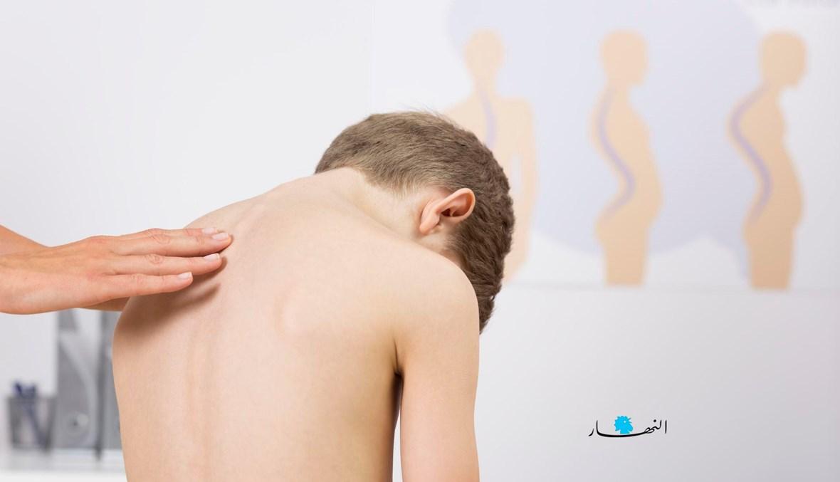 التواء العمود الفقري مشكلة شائعة بين الأطفال